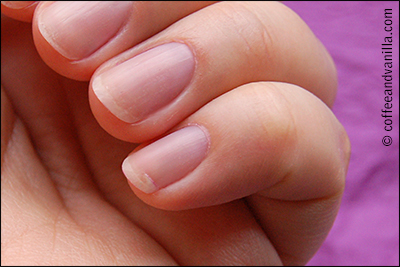 How to fix cracked nails